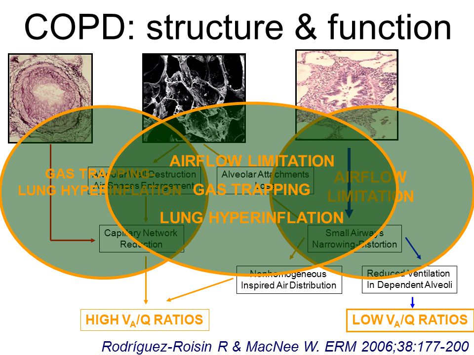 COPD: structure & function Alveolar Wall Destruction Air Spaces Enlargement Alveolar Attachments Loss HIGH V A /Q RATIOS Capillary Network Reduction Small Airways Narrowing-Distortion Nonhomogeneous Inspired Air Distribution LOW V A /Q RATIOS Reduced Ventilation In Dependent Alveoli AIRFLOW LIMITATION GAS TRAPPING- LUNG HYPERINFLATION Rodríguez-Roisin R & MacNee W.
