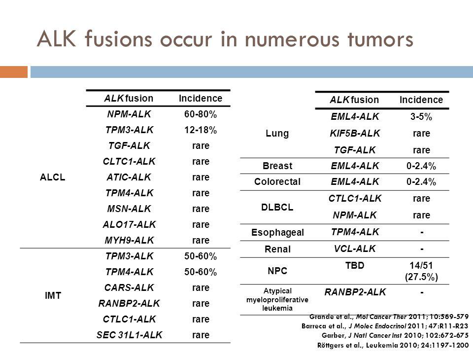 ALK fusions occur in numerous tumors ALK fusionIncidence ALCL NPM-ALK60-80% TPM3-ALK12-18% TGF-ALKrare CLTC1-ALKrare ATIC-ALKrare TPM4-ALKrare MSN-ALK