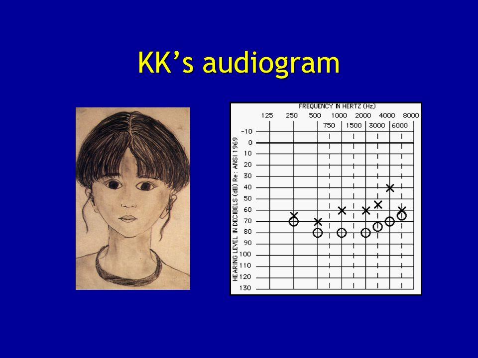 KK's audiogram