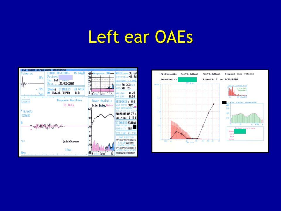 Left ear OAEs