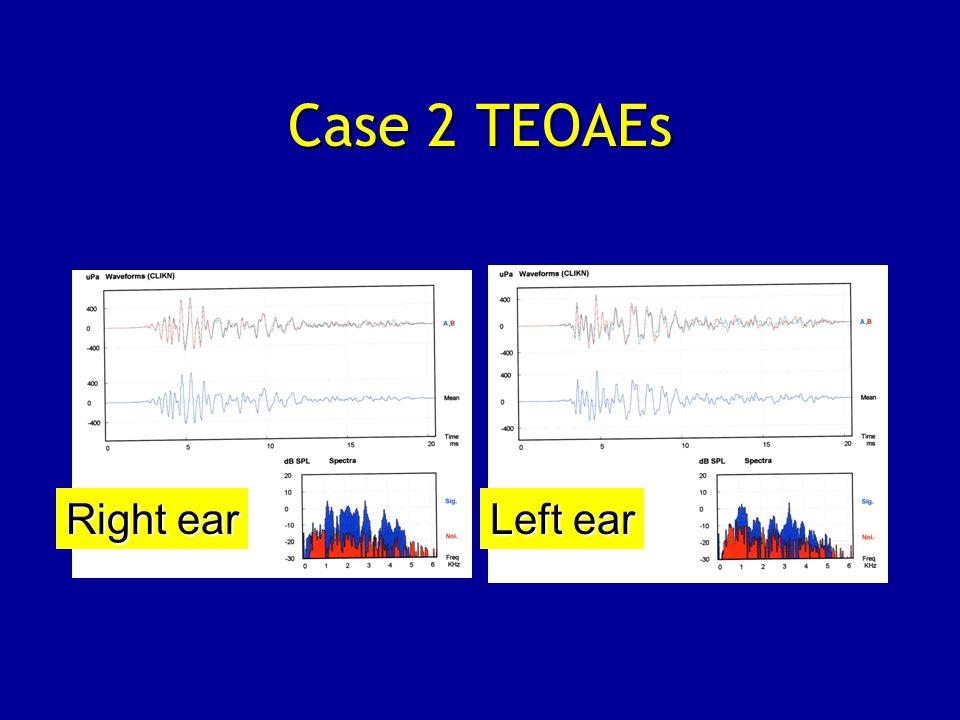 Case 2 TEOAEs Right ear Left ear