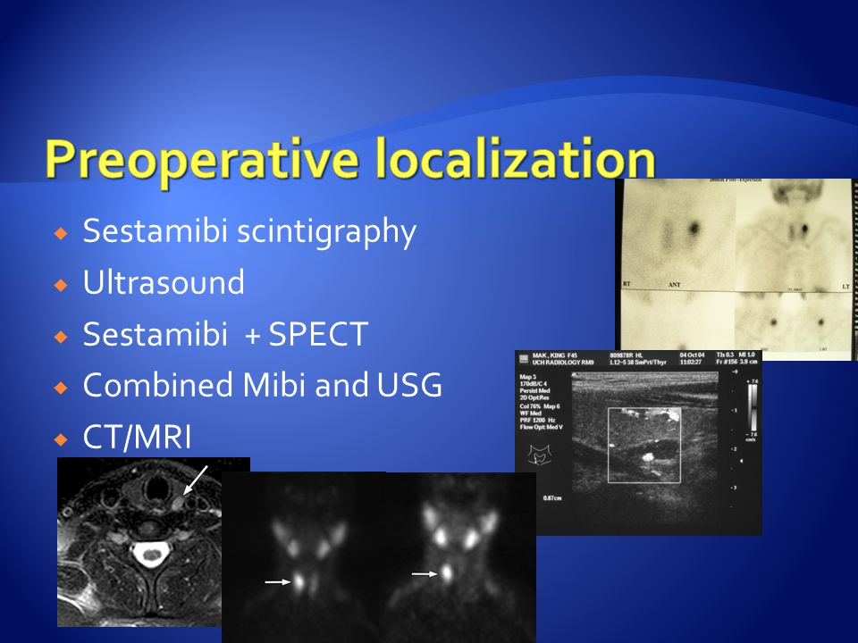  Sestamibi scintigraphy  Ultrasound  Sestamibi + SPECT  Combined Mibi and USG  CT/MRI