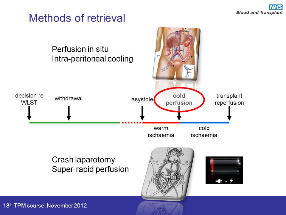 18 th TPM course, November 2012 Methods of retrieval Perfusion in situ Intra-peritoneal cooling Crash laparotomy Super-rapid perfusion