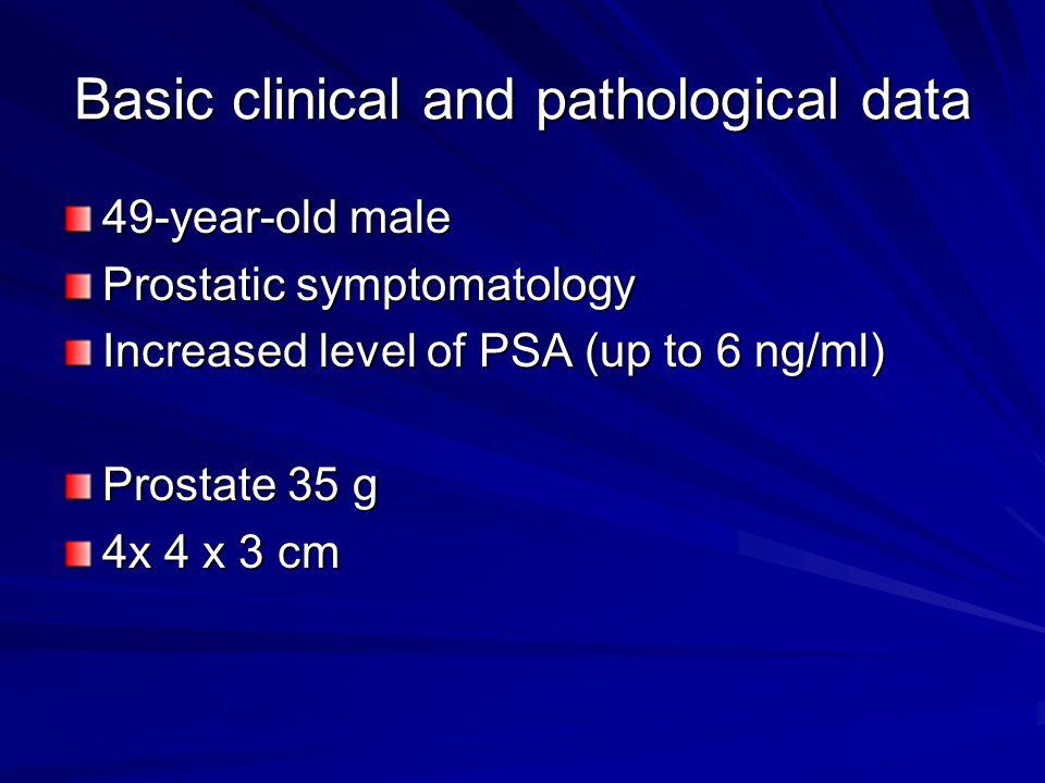 Basic clinical and pathological data 49-year-old male Prostatic symptomatology Increased level of PSA (up to 6 ng/ml) Prostate 35 g 4x 4 x 3 cm