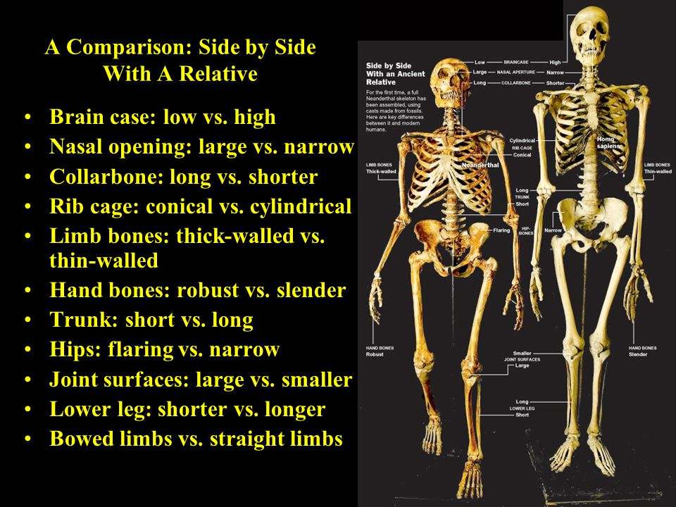 A Comparison: Side by Side With A Relative Brain case: low vs. high Nasal opening: large vs. narrow Collarbone: long vs. shorter Rib cage: conical vs.