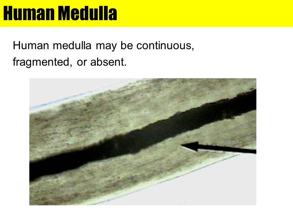 Human Medulla Human medulla may be continuous, fragmented, or absent.