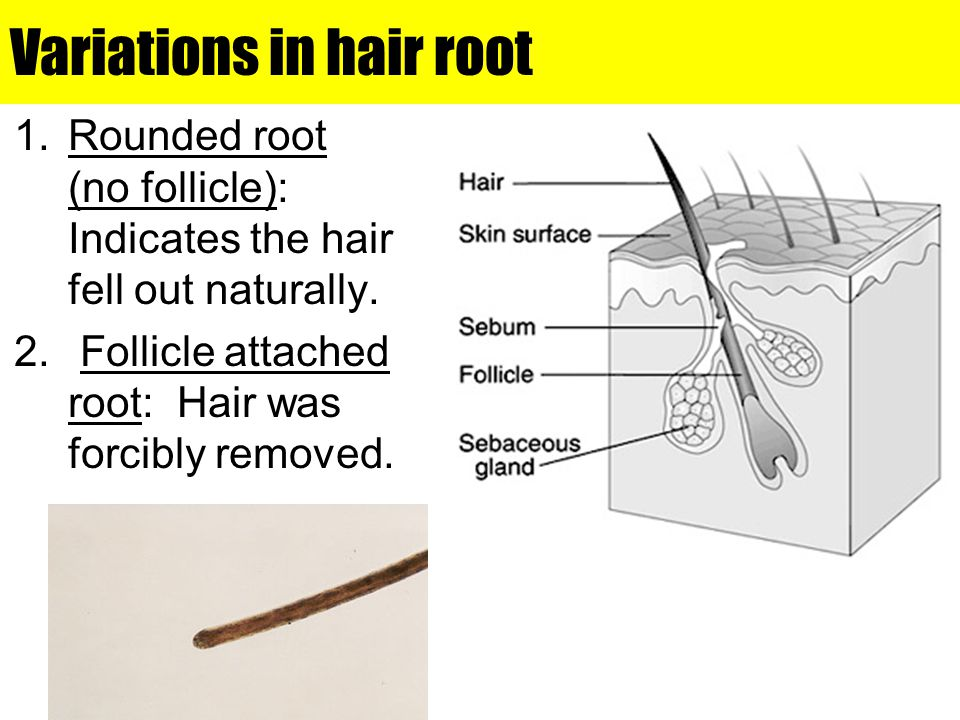 Variations in hair root 1.Rounded root (no follicle): Indicates the hair fell out naturally. 2. Follicle attached root: Hair was forcibly removed.