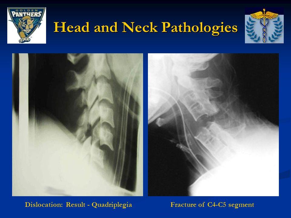 Fracture of C4-C5 segmentDislocation: Result - Quadriplegia Head and Neck Pathologies
