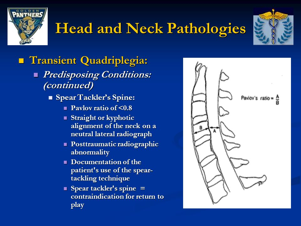 Head and Neck Pathologies Transient Quadriplegia: Transient Quadriplegia: Predisposing Conditions: (continued) Predisposing Conditions: (continued) Spear Tackler's Spine: Spear Tackler's Spine: Pavlov ratio of <0.8 Pavlov ratio of <0.8 Straight or kyphotic alignment of the neck on a neutral lateral radiograph Straight or kyphotic alignment of the neck on a neutral lateral radiograph Posttraumatic radiographic abnormality Posttraumatic radiographic abnormality Documentation of the patient s use of the spear- tackling technique Documentation of the patient s use of the spear- tackling technique Spear tackler s spine = contraindication for return to play Spear tackler s spine = contraindication for return to play