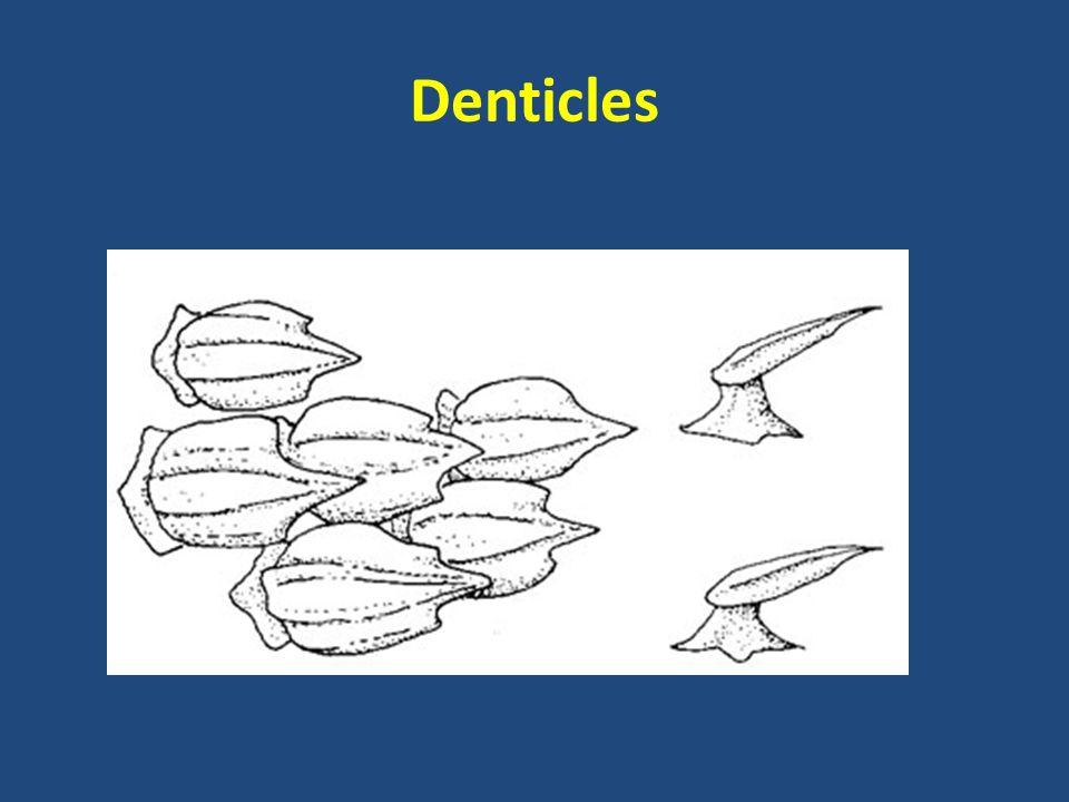 Denticles