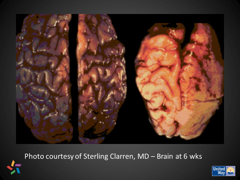 Photo courtesy of Sterling Clarren, MD – Brain at 6 wks