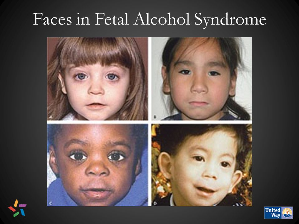 Faces in Fetal Alcohol Syndrome