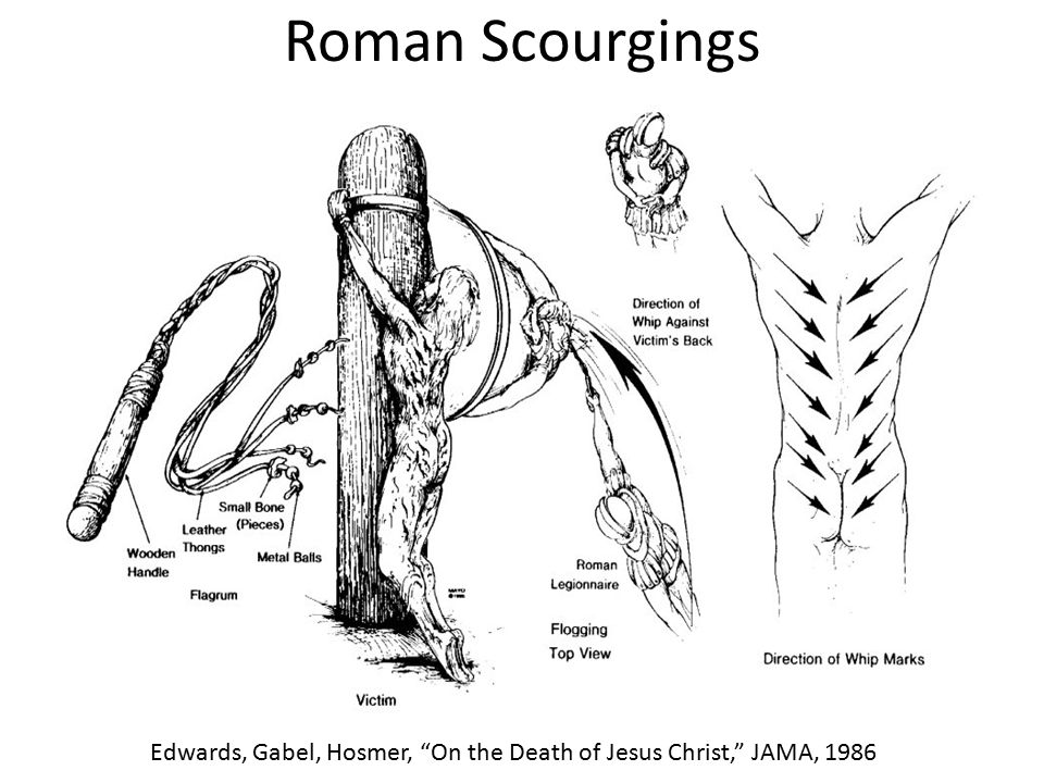 "Roman Scourgings Edwards, Gabel, Hosmer, ""On the Death of Jesus Christ,"" JAMA, 1986"