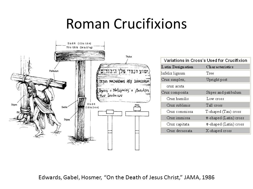 "Roman Crucifixions Edwards, Gabel, Hosmer, ""On the Death of Jesus Christ,"" JAMA, 1986"