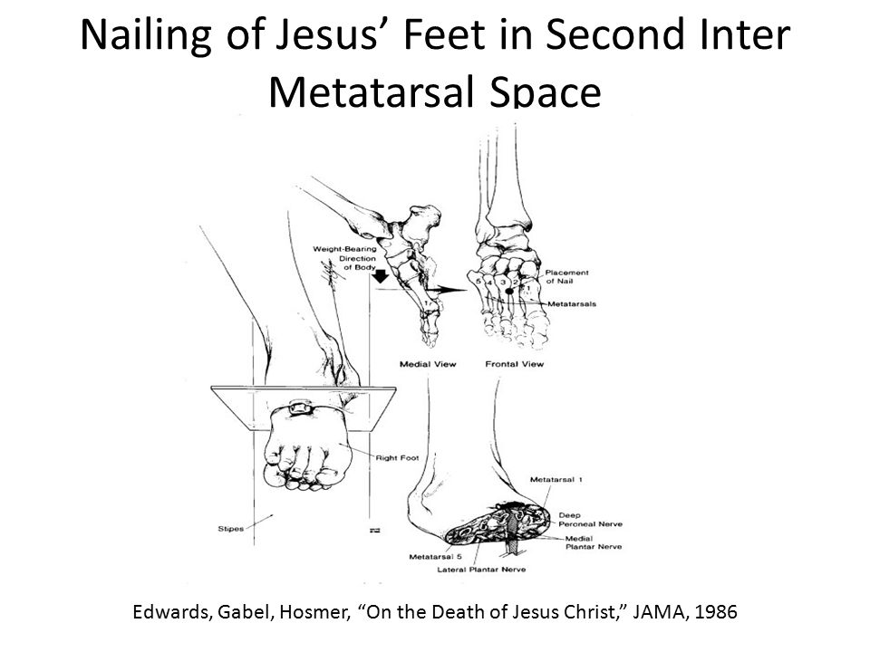 "Nailing of Jesus' Feet in Second Inter Metatarsal Space Edwards, Gabel, Hosmer, ""On the Death of Jesus Christ,"" JAMA, 1986"