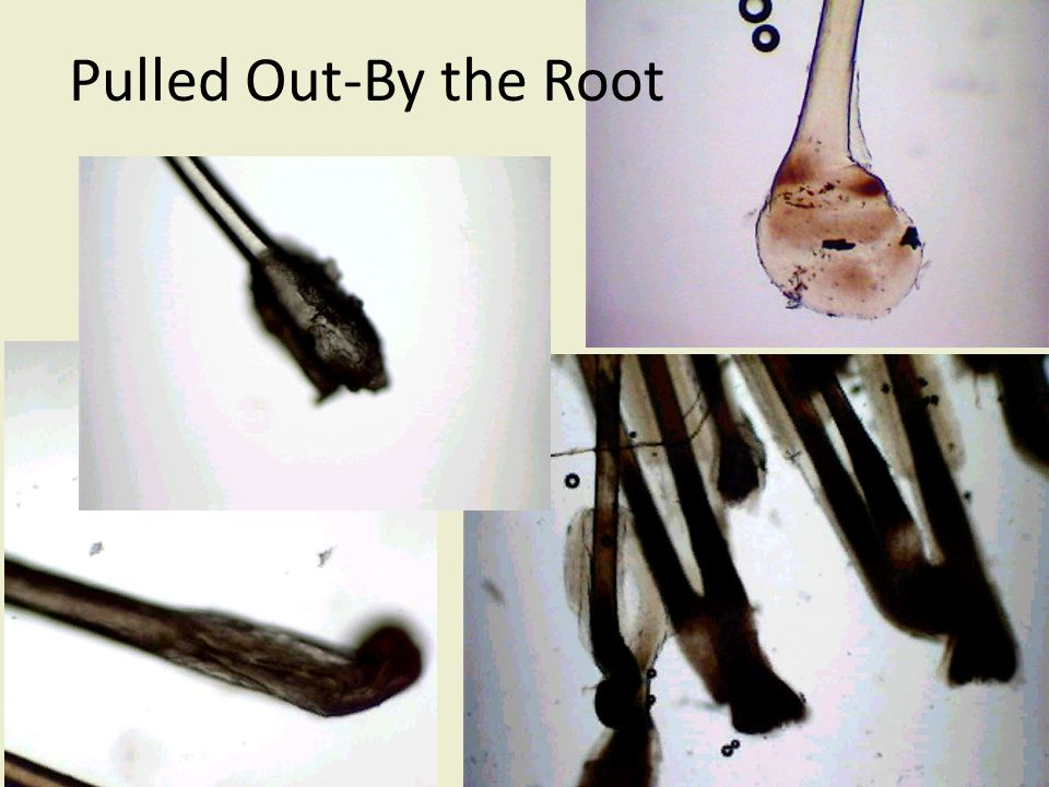 Pulled Out-By the Root