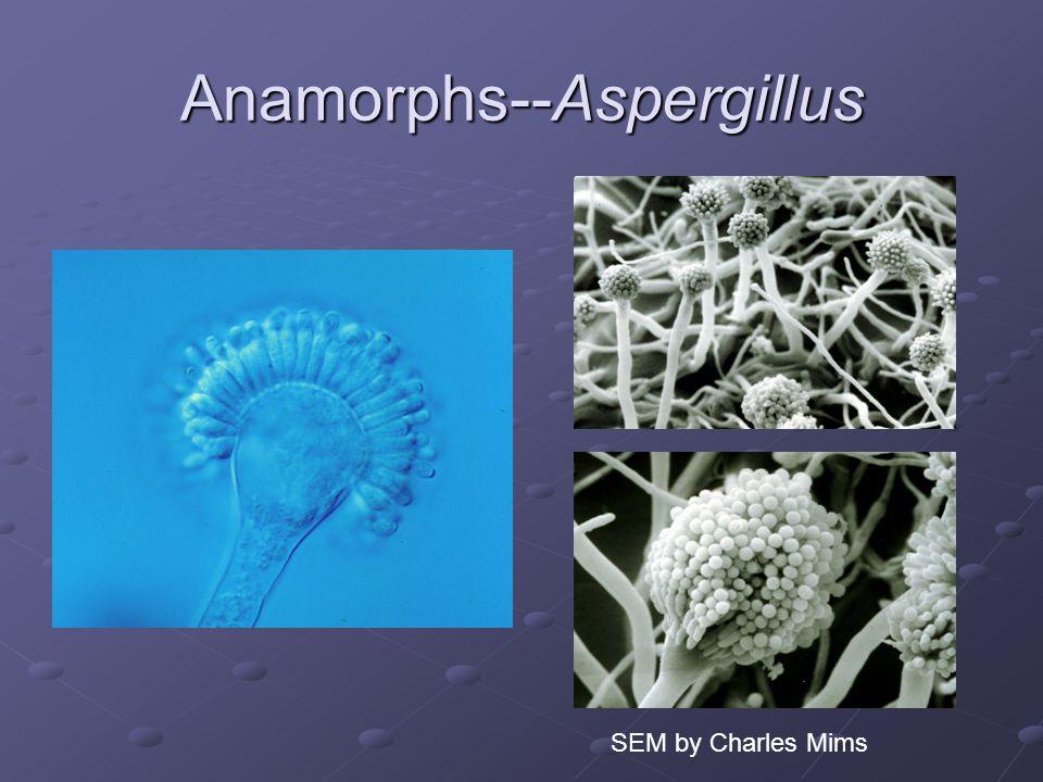 Anamorphs--Aspergillus SEM by Charles Mims