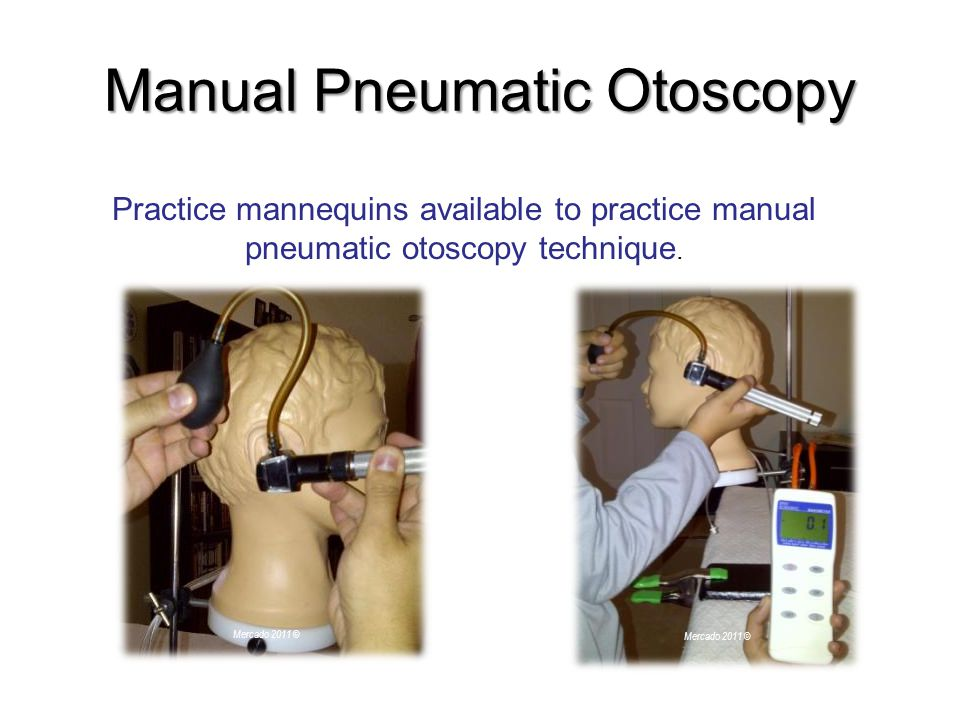 Manual Pneumatic Otoscopy Practice mannequins available to practice manual pneumatic otoscopy technique.