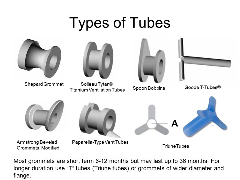 Types of Tubes Shepard Grommet Soileau Tytan® Titanium Ventilation Tubes Spoon Bobbins Goode T-Tubes® Armstrong Beveled Grommets, Modified Paparella-Type Vent Tubes TriuneTubes A Most grommets are short term 6-12 months but may last up to 36 months.