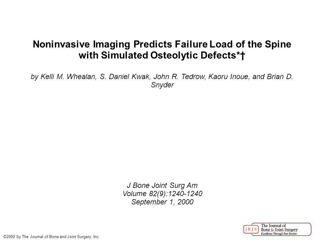 Noninvasive Imaging Predicts Failure Load of the Spine with Simulated Osteolytic Defects*† by Kelli M.