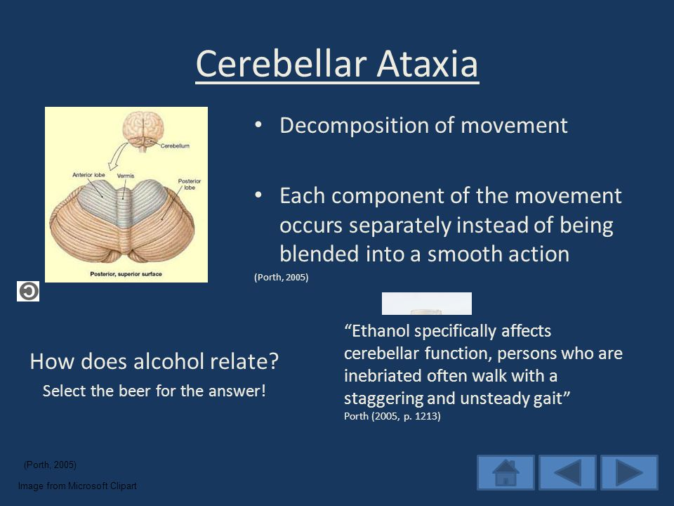 Cerebellar Ataxia How does alcohol relate. Select the beer for the answer.