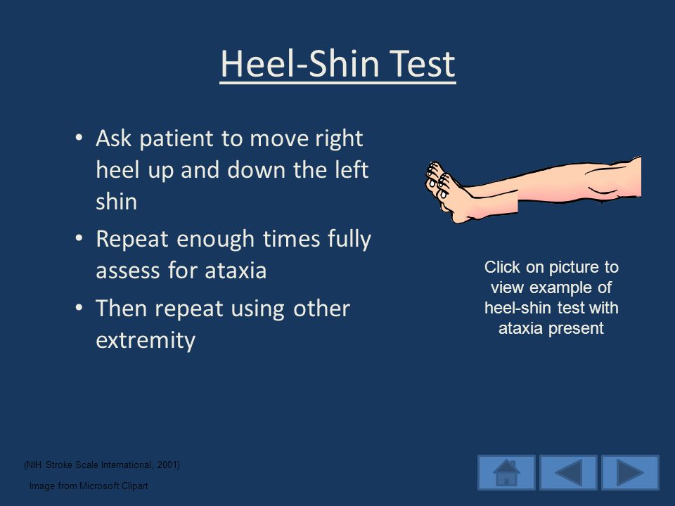 Heel-Shin Test Ask patient to move right heel up and down the left shin Repeat enough times fully assess for ataxia Then repeat using other extremity (NIH Stroke Scale International, 2001) Image from Microsoft Clipart Click on picture to view example of heel-shin test with ataxia present