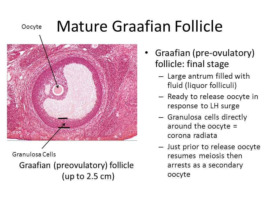 Site of follicular Rupture / Corpus Luteum A. Granulosa cells B. Corpora albicans