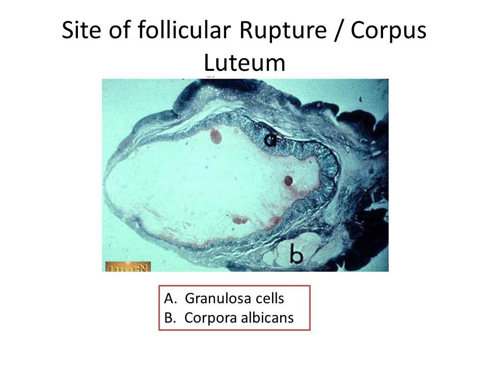 Corpus Luteum After ovulation, the remaining wall of the graafian follicle transforms into the corpus luteum The wall of the corpus luteum is folded and contains granulosa lutein cells derived from granulosa cells which secrete progesterone