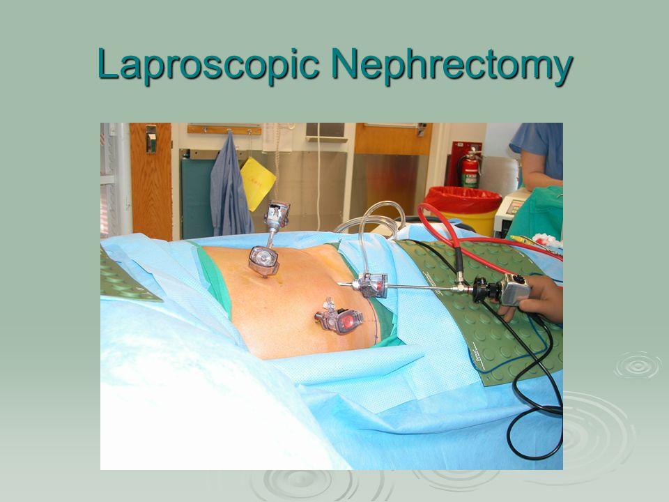 Laproscopic Nephrectomy