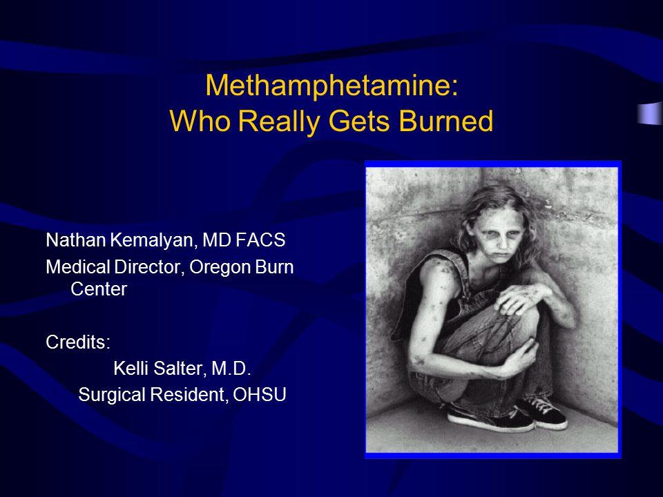 Methamphetamine: Who Really Gets Burned Nathan Kemalyan, MD FACS Medical Director, Oregon Burn Center Credits: Kelli Salter, M.D.