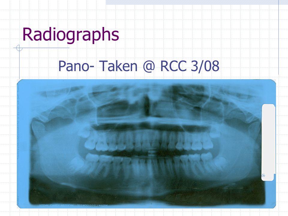 Radiographs Pano- Taken @ RCC 3/08