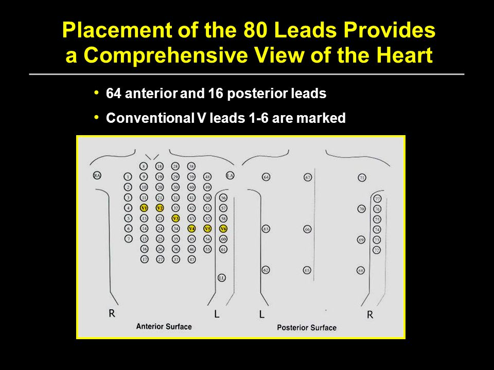 Placement of the 80 Leads Provides a Comprehensive View of the Heart 64 anterior and 16 posterior leads Conventional V leads 1-6 are marked