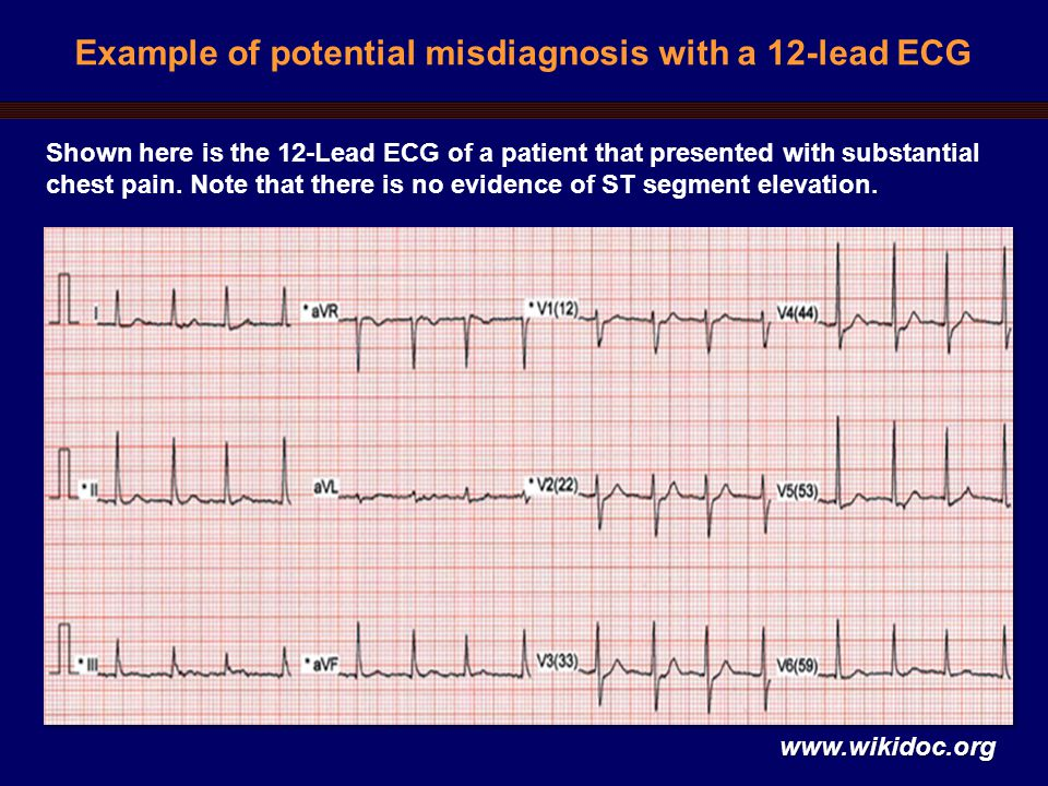 Example of potential misdiagnosis with a 12-lead ECG Shown here is the 12-Lead ECG of a patient that presented with substantial chest pain.
