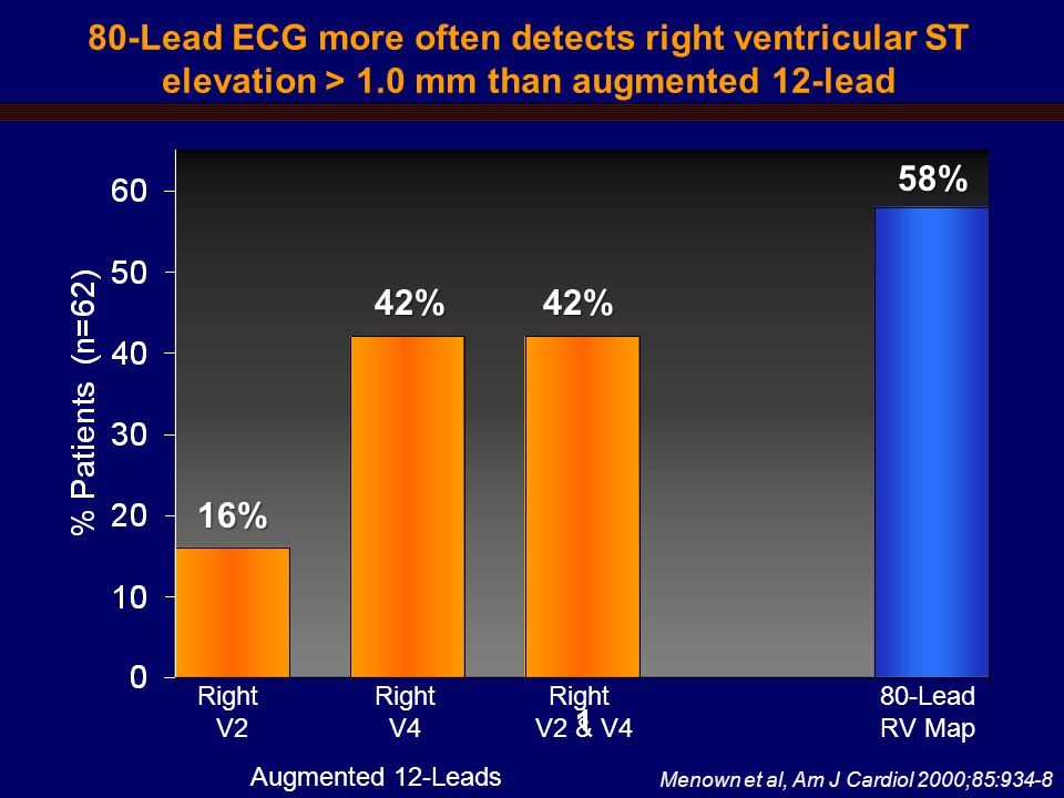 80-Lead ECG more often detects right ventricular ST elevation > 1.0 mm than augmented 12-lead Menown et al, Am J Cardiol 2000;85:934-8 Right V2 Right V4 Right V2 & V4 16% 42%42% 58% 80-Lead RV Map Augmented 12-Leads