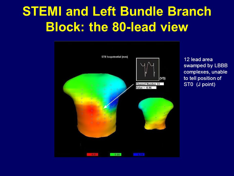 STEMI and Left Bundle Branch Block: the 80-lead view 12 lead area swamped by LBBB complexes, unable to tell position of ST0 (J point)
