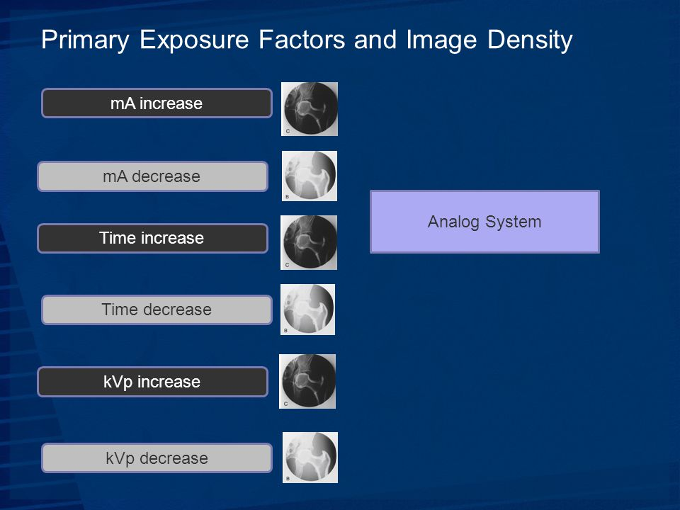 Primary Exposure Factors and Image Density mA increase mA decrease Time increase Time decrease kVp increase kVp decrease Analog System