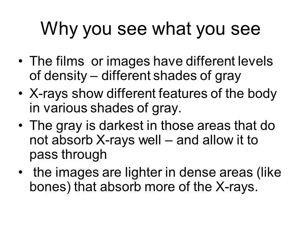 Why you see what you see The films or images have different levels of density – different shades of gray X-rays show different features of the body in