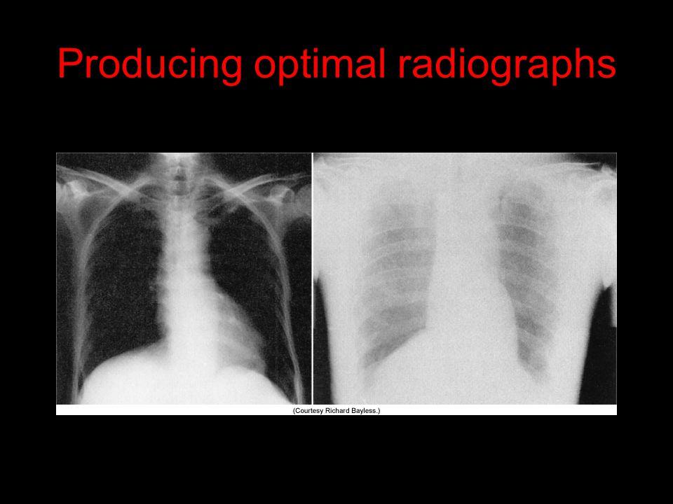 Producing optimal radiographs
