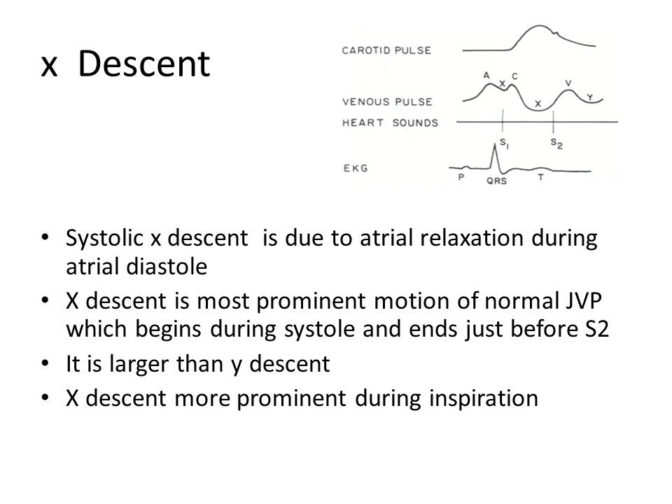 x Descent Systolic x descent is due to atrial relaxation during atrial diastole X descent is most prominent motion of normal JVP which begins during s