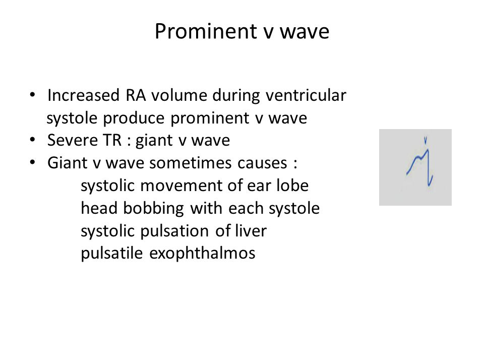 Prominent v wave Increased RA volume during ventricular systole produce prominent v wave Severe TR : giant v wave Giant v wave sometimes causes : syst