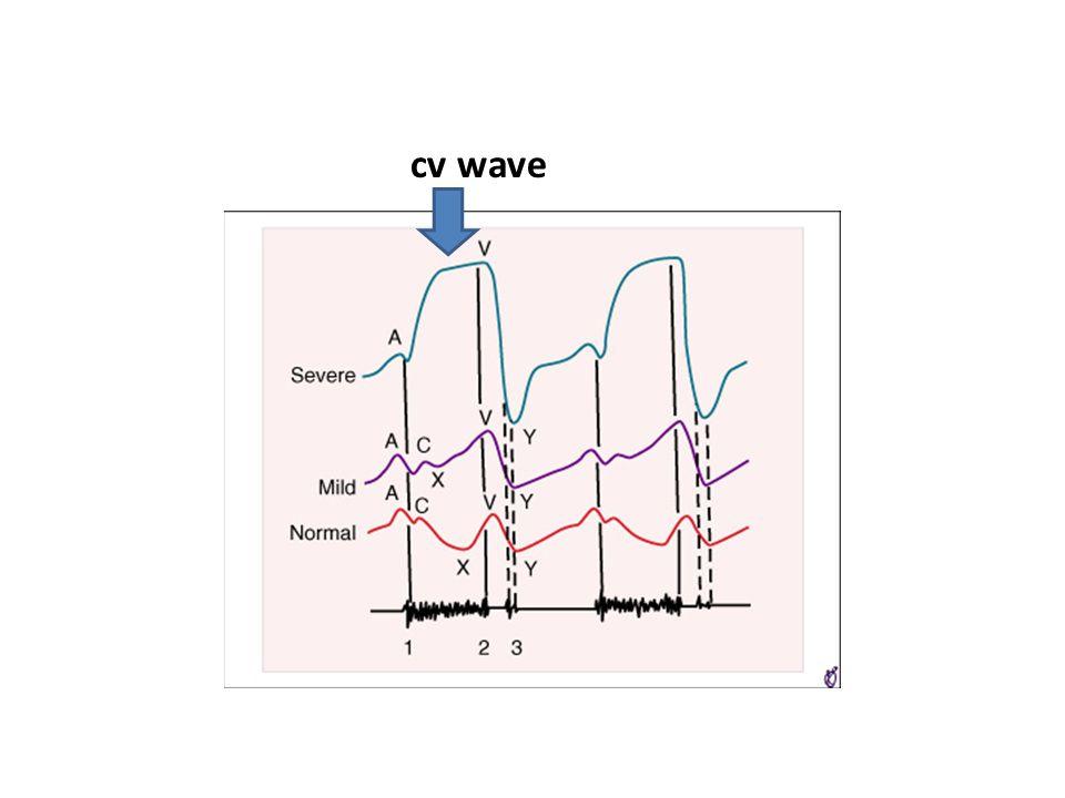 cv wave