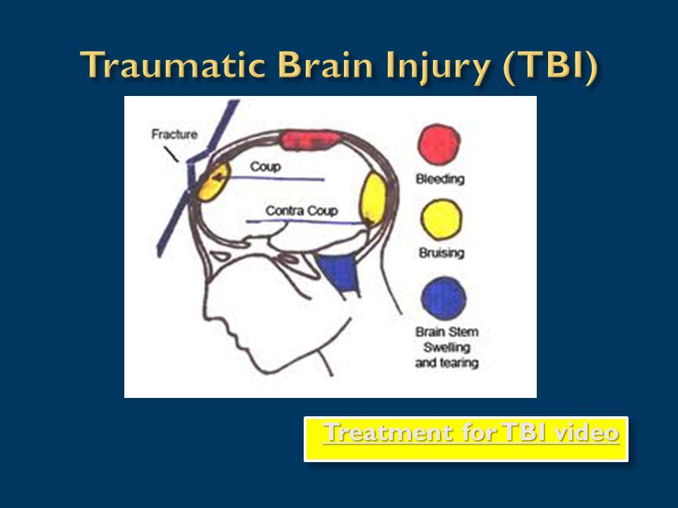 Treatment for TBI video Treatment for TBI video Treatment for TBI video Treatment for TBI video