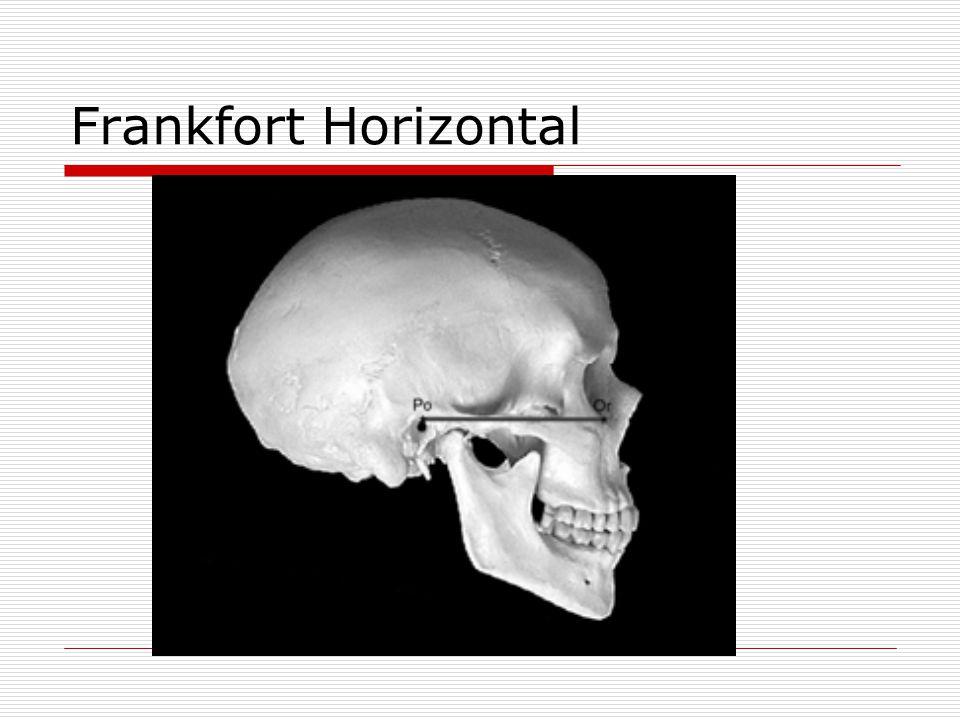 Frankfort Horizontal