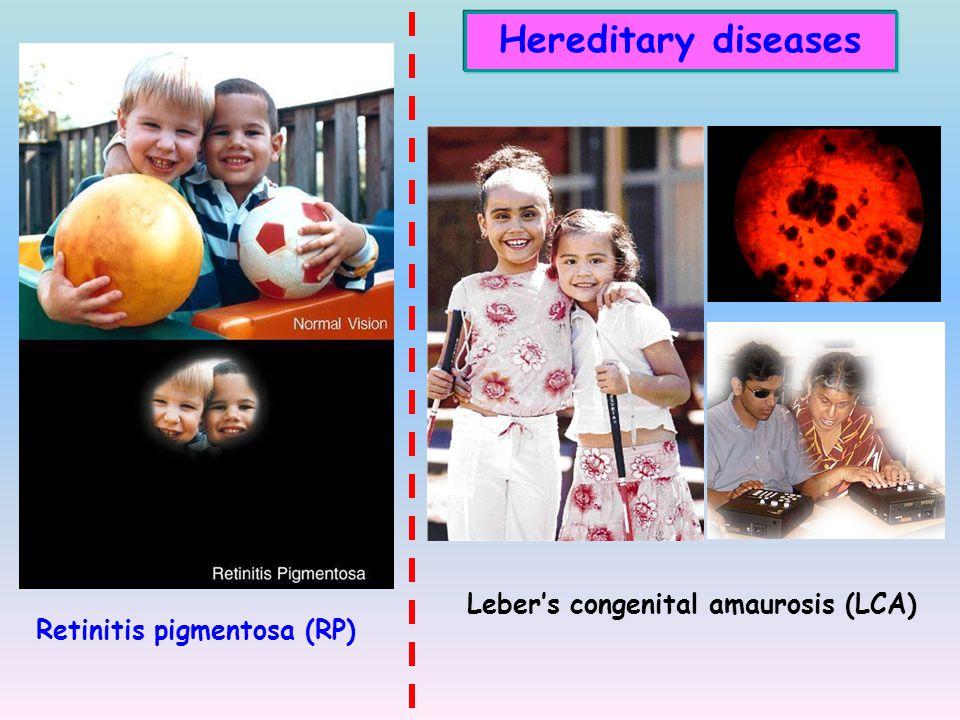 Age-related diseases Normal VisionAMD  Alzheimer's disease  Parkinson disease  Age-related macular degeneration  Huntington disease  Multiple sclerosis  …… Age-related macular degeneration Alzheimer's disease