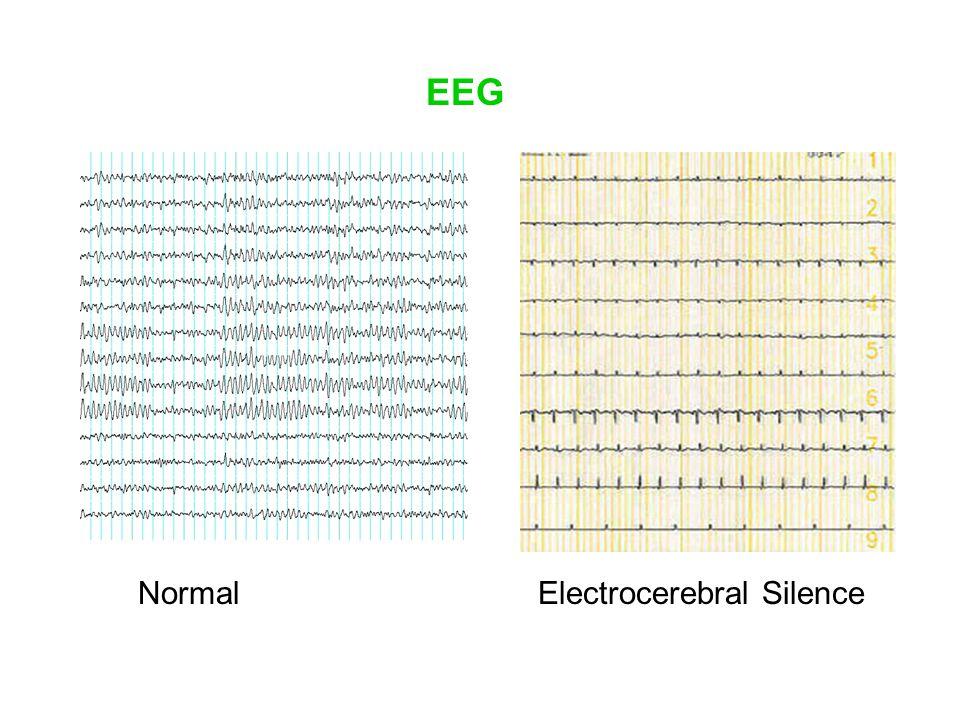 NormalElectrocerebral Silence EEG