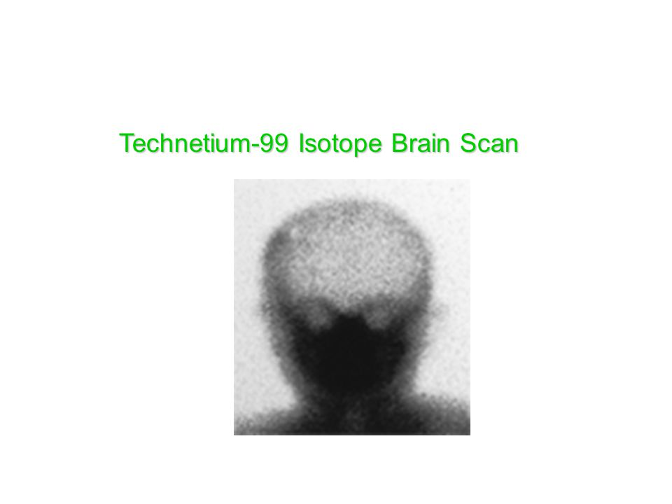 Technetium-99 Isotope Brain Scan