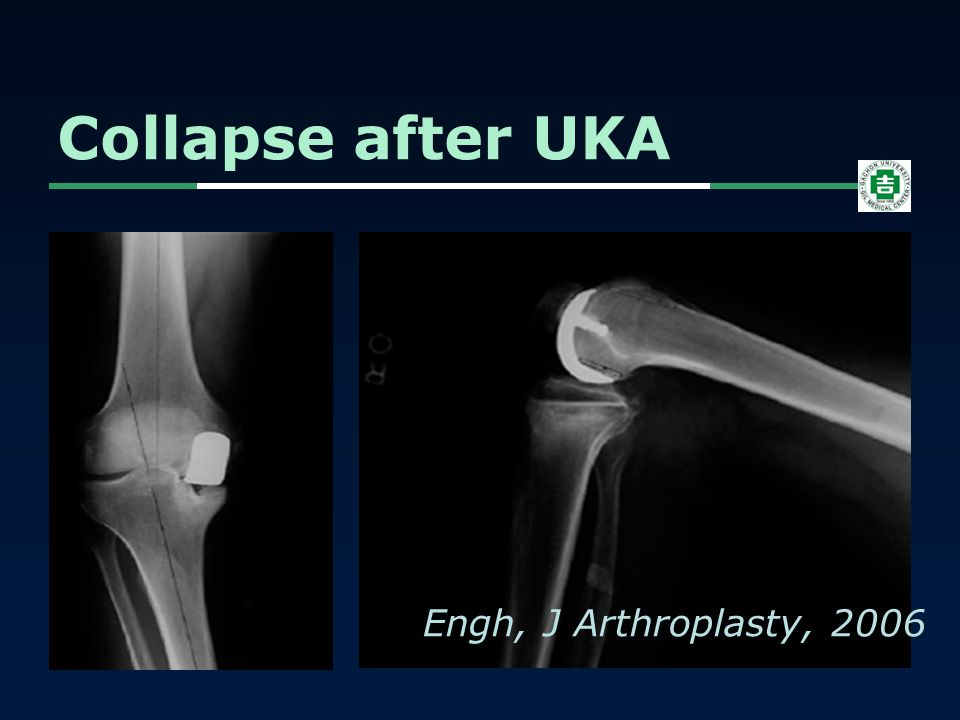 Collapse after UKA Engh, J Arthroplasty, 2006