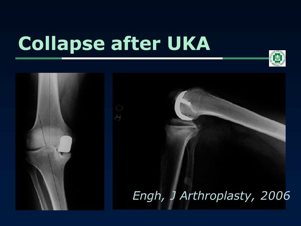 Collapse after UKA Engh, J Arthroplasty, 2006