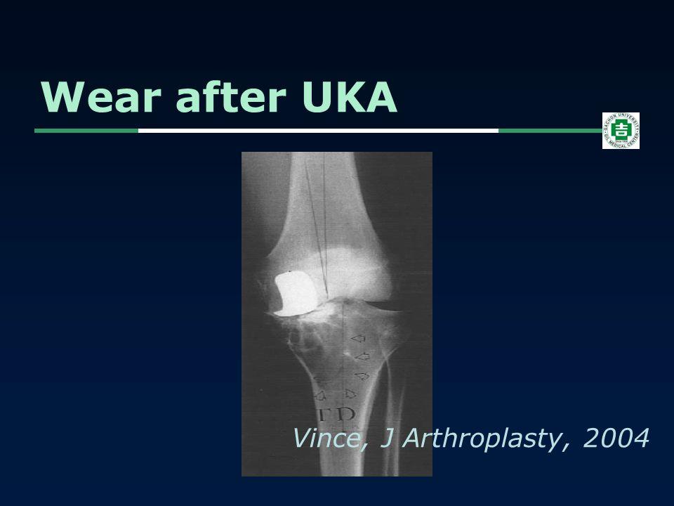 Wear after UKA Vince, J Arthroplasty, 2004