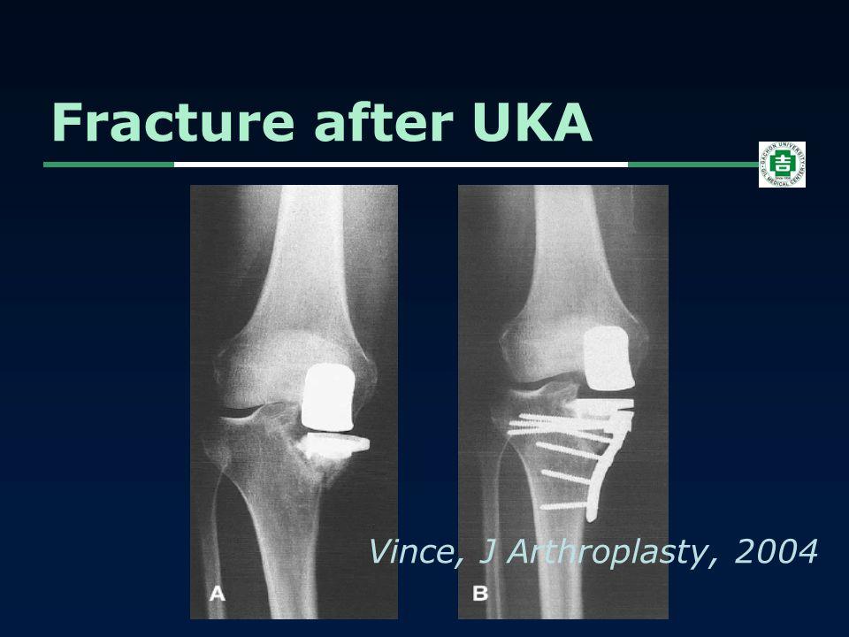 Fracture after UKA Vince, J Arthroplasty, 2004